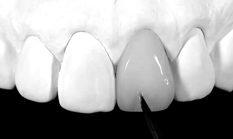 prótese dentária em zircônia