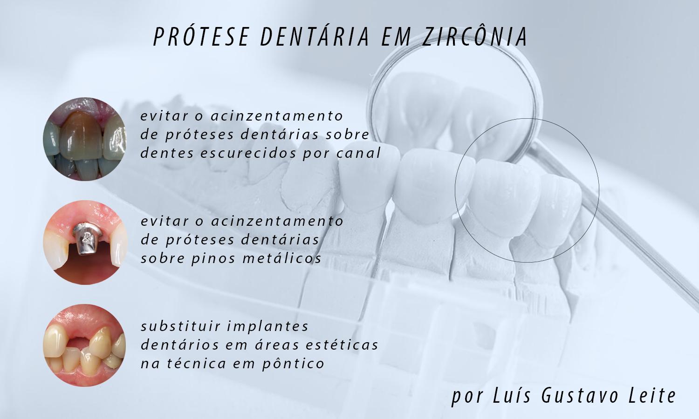 protese dentária em zircônia indicações