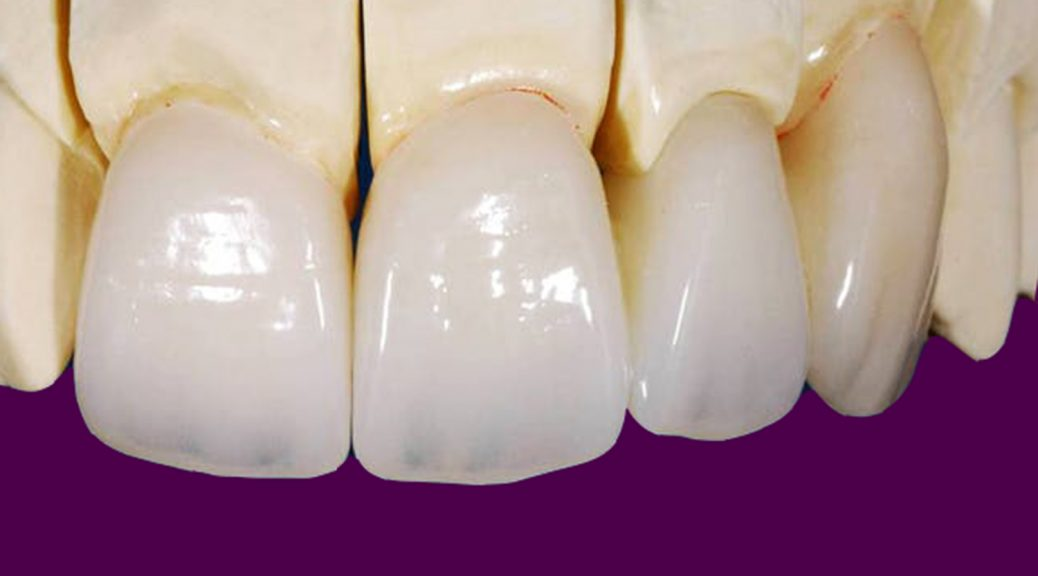 protese dentaria em zirconia indicações pros e contras post blog