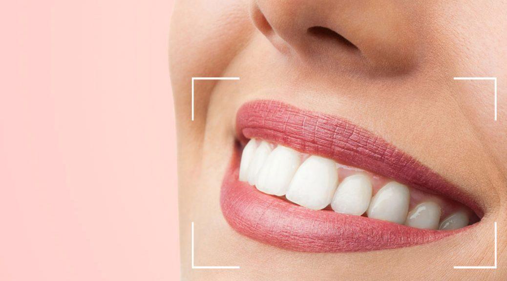 dente de porcelana pura ou zircônia post