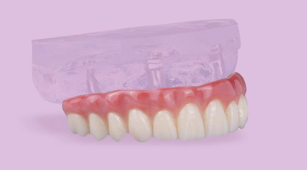 protese dentaria protocolo implante dentário quantos número quantidade