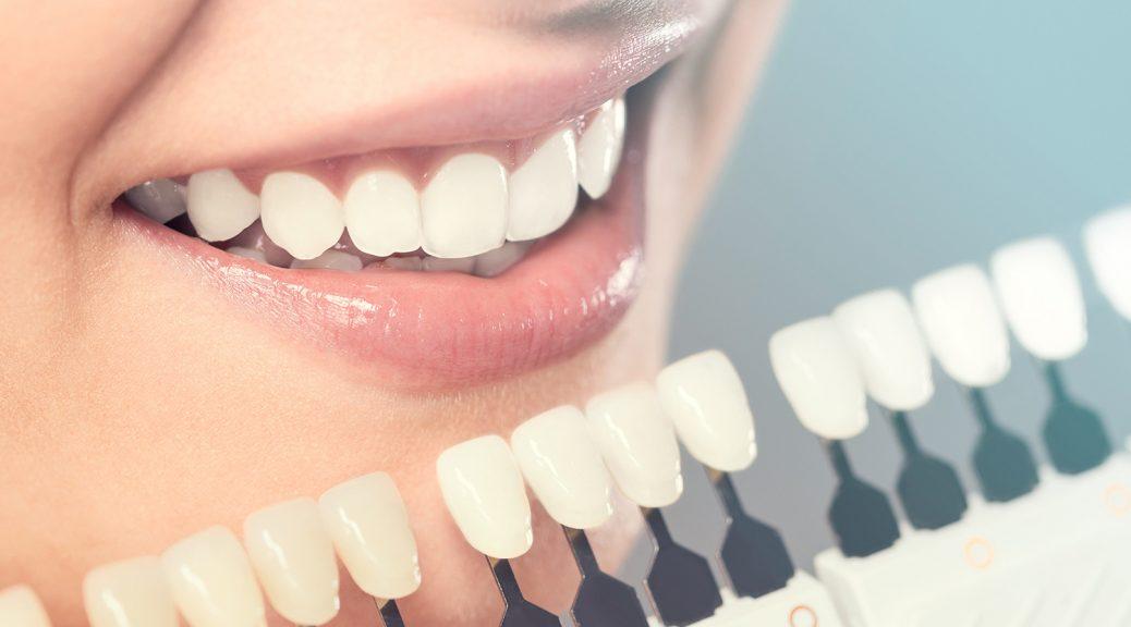 prótese dentária em zircônia dente escuro ou escurecido tratamento de canal post blog