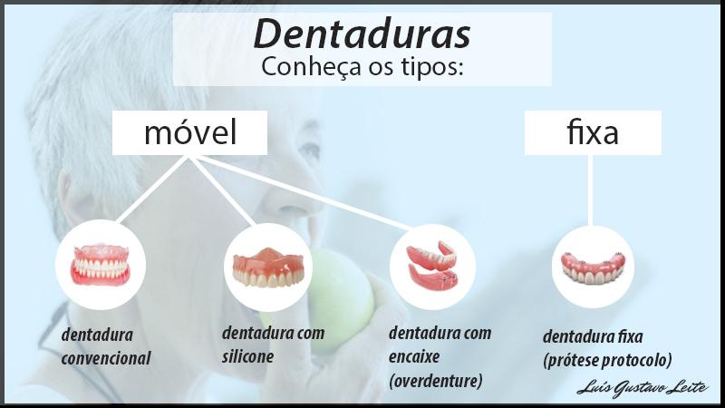 dentadura tipos movel e fixa