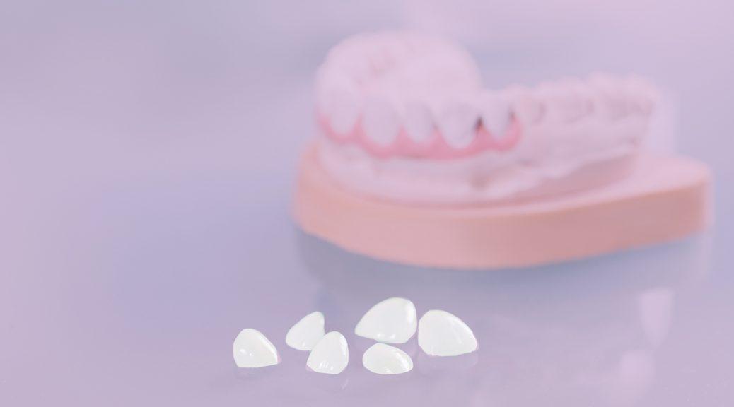 dente escuro e escurecido lente de contato dental blog