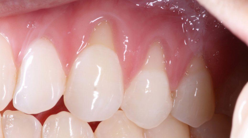 gengiva retraída em dente com prótese dentária de porcelana