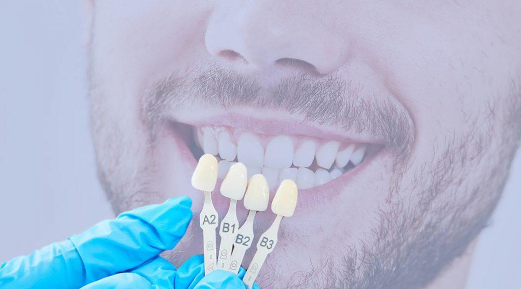 lente de contato dental e faceta de porcelana diferença desgaste post
