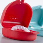 Recuperação de dentes quebrados por bruxismo: resina ou porcelana?