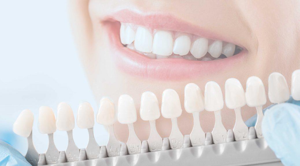 coroa dentaria em porcelana pura