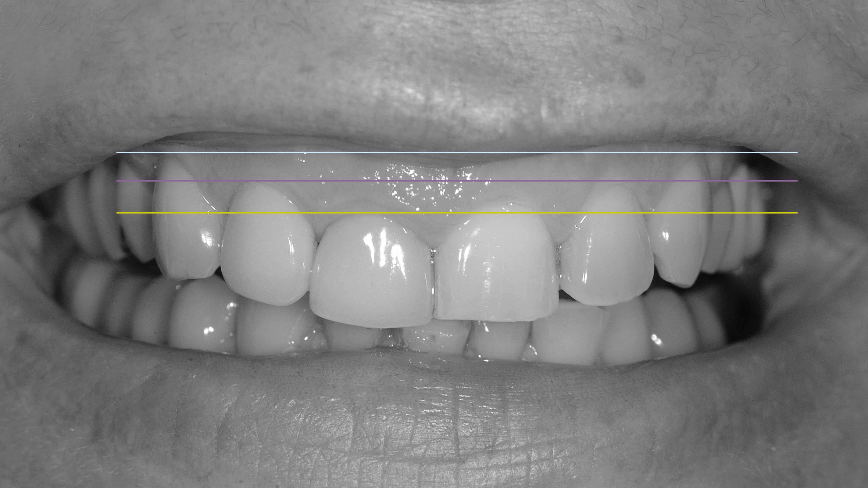 gengivoplastia sorriso gengival cirurgia