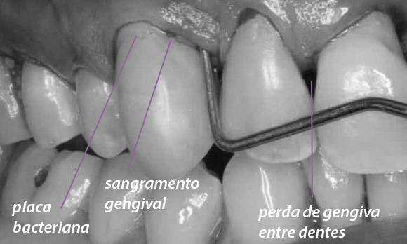 retração gengival tratamento periodontite