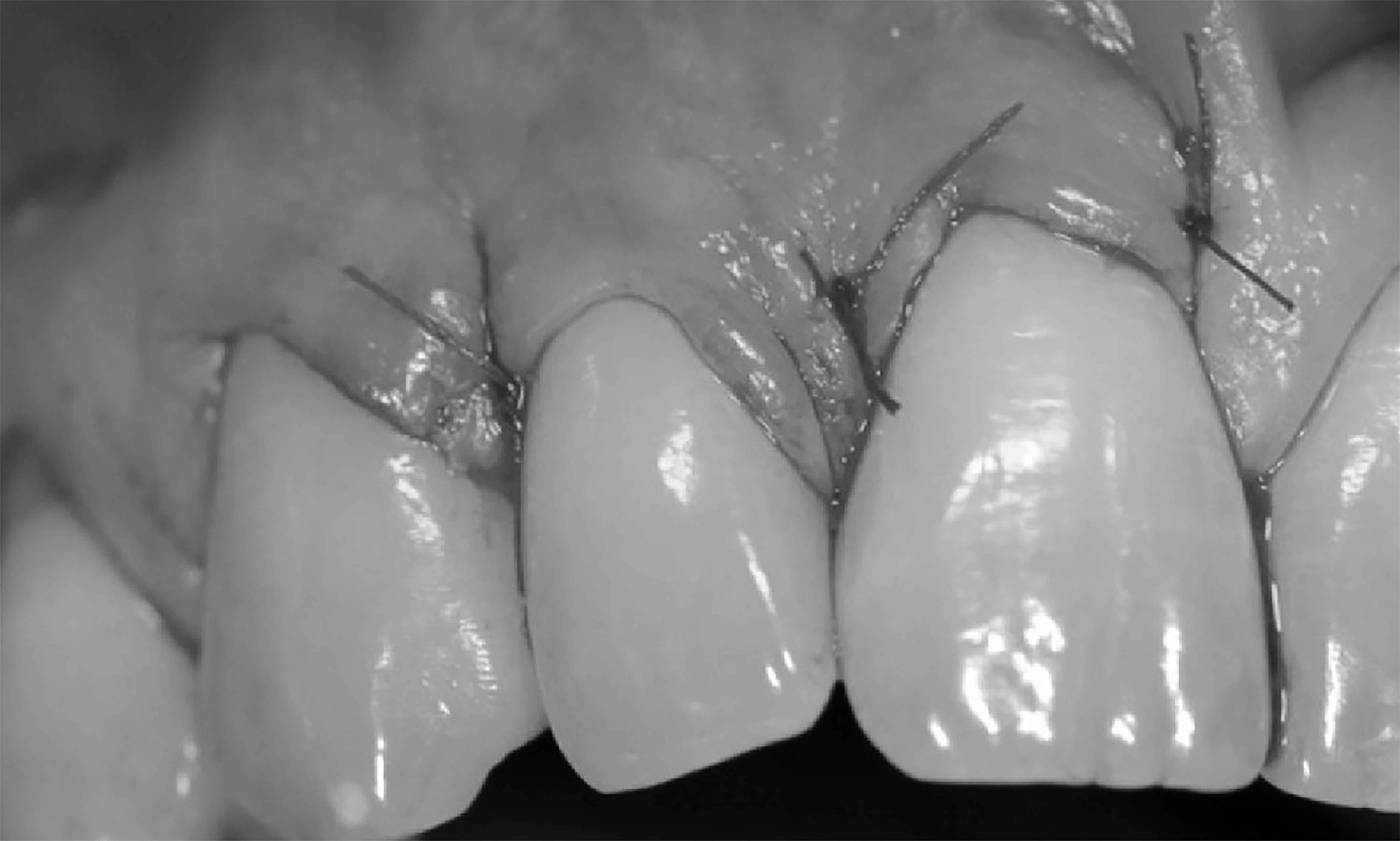 cirurgia para retração da gengiva prótese dentária