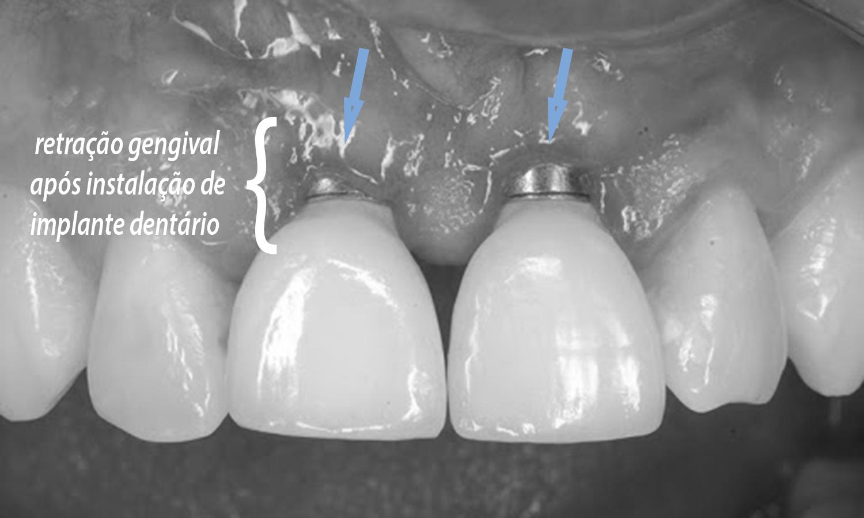 post blog gengiva retraída implante dentário