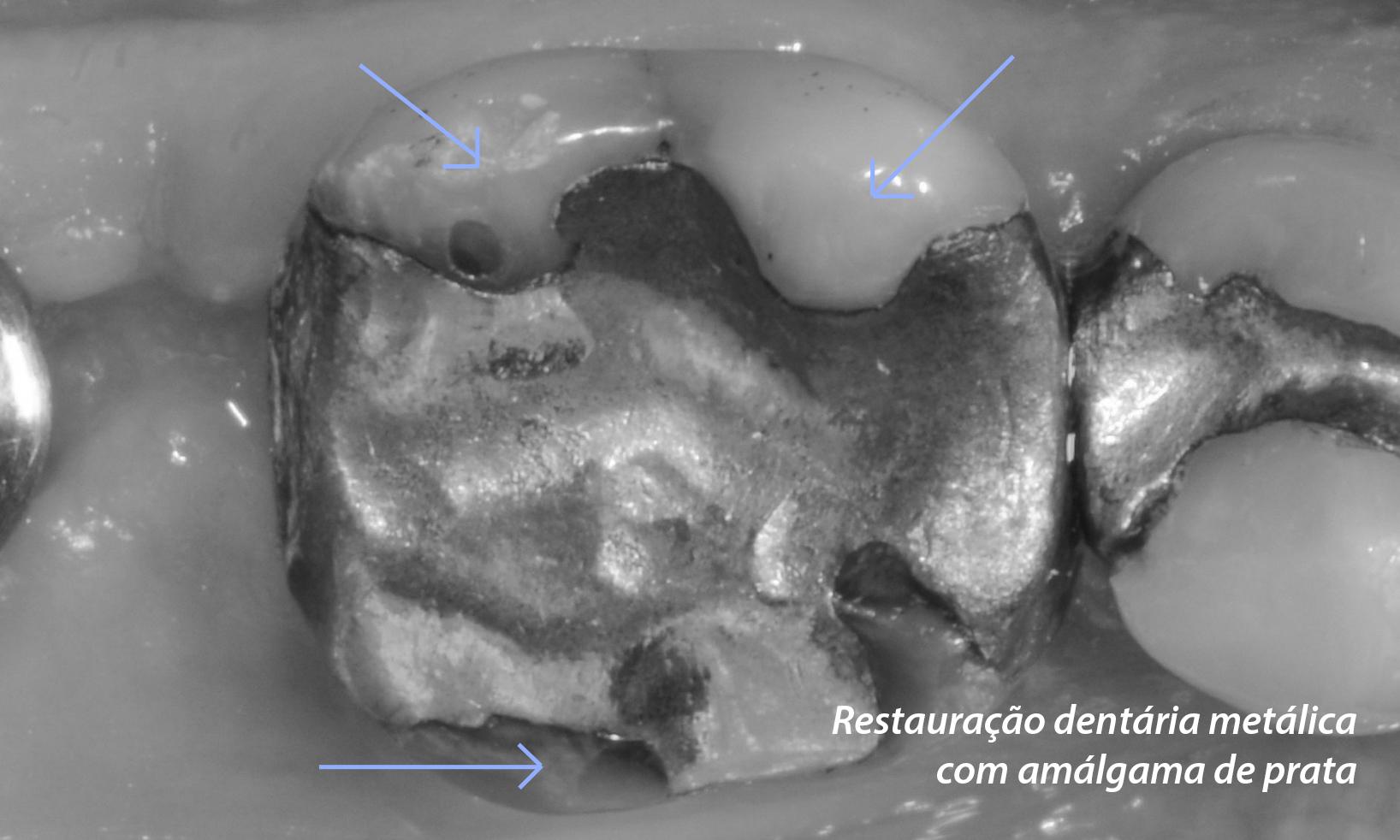 restauração dental com metal amálgama
