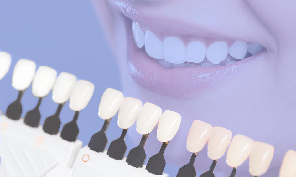 restauração dental em resina indicações prós e contras post
