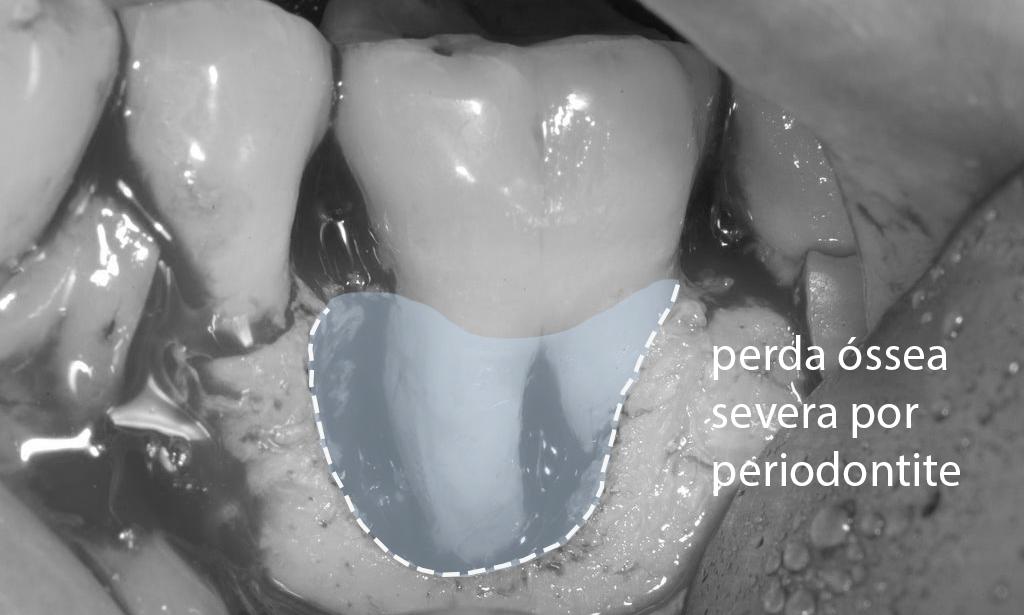 enxerto de osso tratamento periodontite