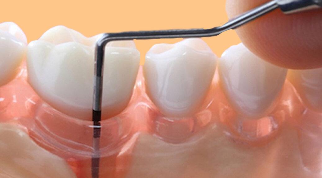 enxerto gengival e periodontite