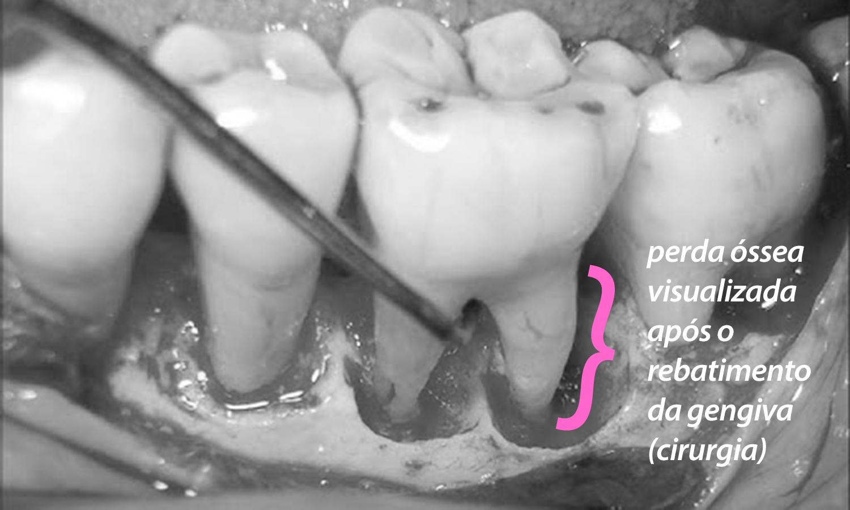 periodontite tratamento cirurgia