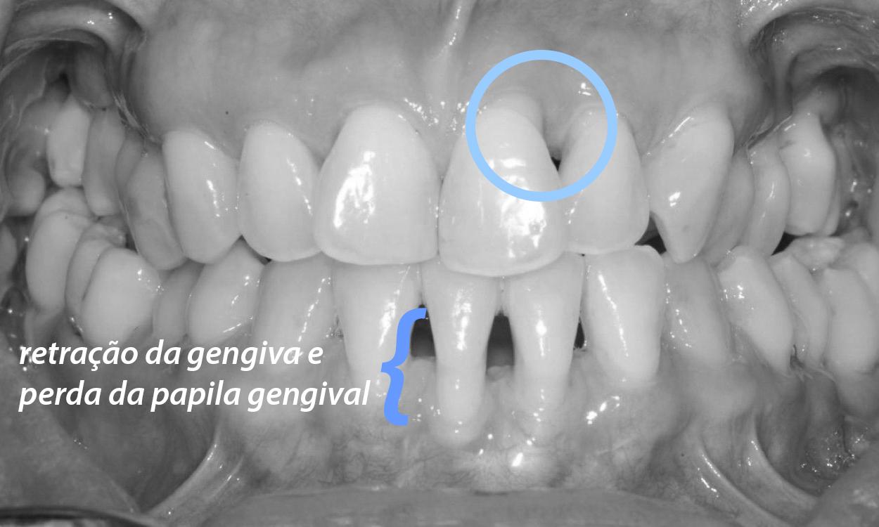 retração gengival e periodontite tratamento