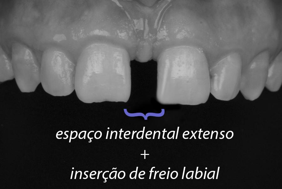 diastema causa freio labial