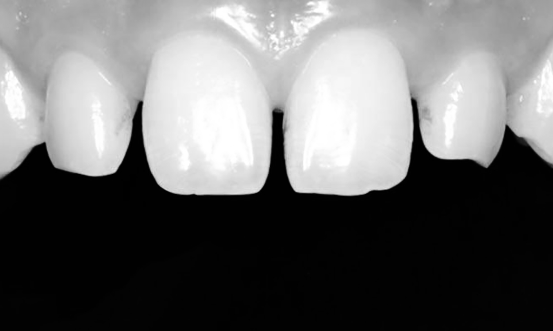 diastema tratamento lente de contato dental post