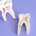 Fratura em raiz dentária: implante não é a única solução.