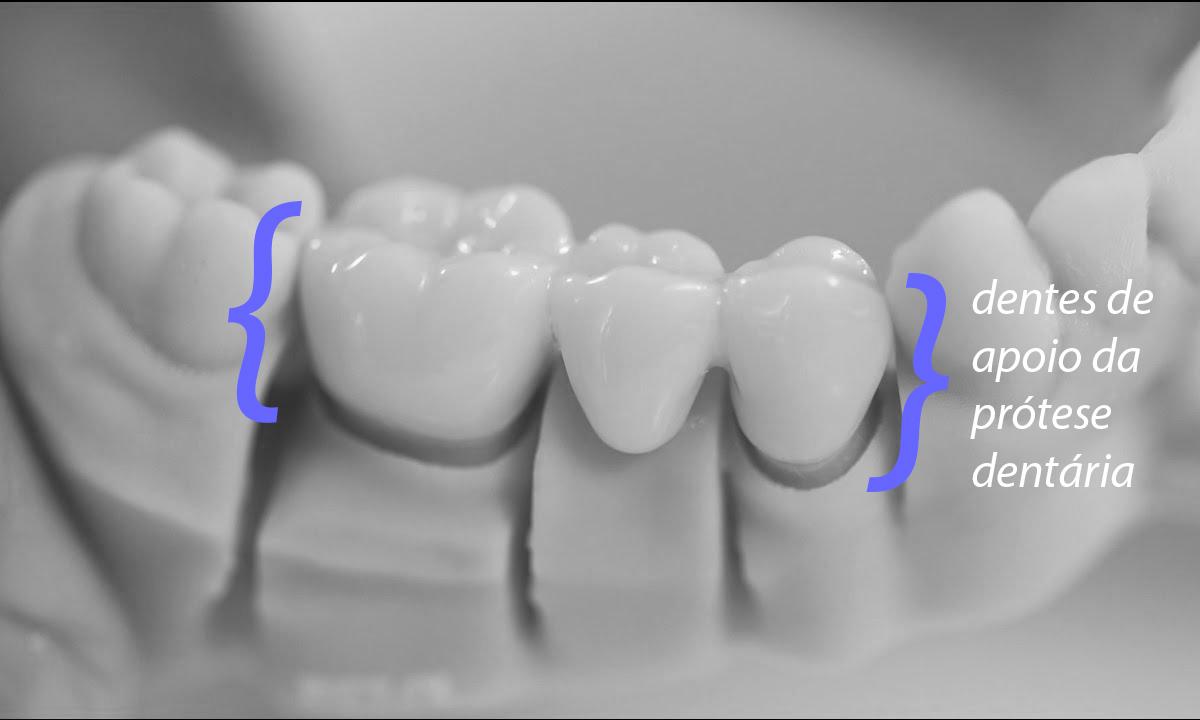 protese dentaria fixa pôntico