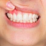 Coroa dentária em porcelana pode estar por trás da retração gengival.