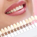Corrigir dentes tortos com faceta de resina funciona – mas tem limitações.