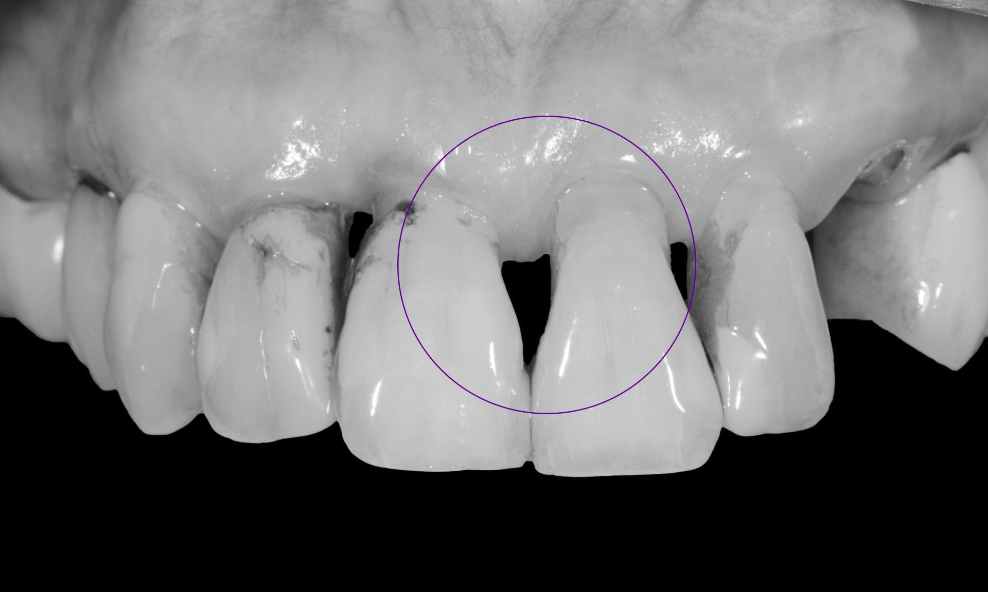 preenchimento gengival periodontite