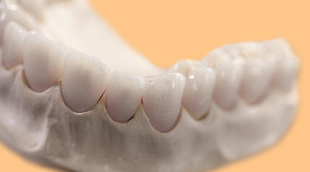 protese dentaria fixa porcelana e zircônia materiais blog