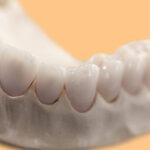 Prótese dentária: da porcelana à zircônia, escolha o material e o tipo ideal.