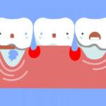 Retração gengival por periodontite: recuperar gengivas é difícil e restrito.