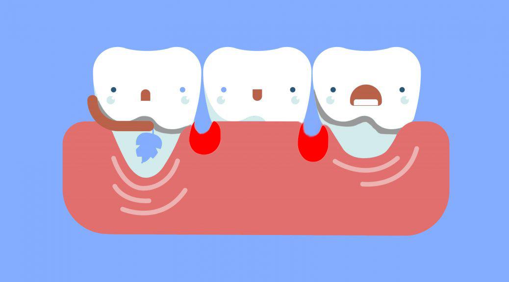 retração gengival e periodontite post blog