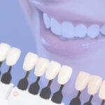 Faceta de porcelana é tratamento seguro aos dentes, mas exige cuidados.
