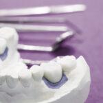 Prótese dentária fixa: o que é, os tipos e o melhor material explicados.