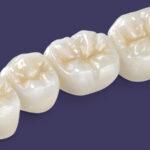 Prótese em zirconia é alternativa para recuperar dentes desgastados por bruxismo.