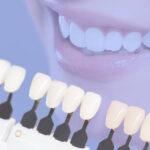 Faceta de resina para dentes desgastados por bruxismo tem limitações.