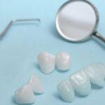 Prótese adesiva em porcelana pode ser alternativa ao implante dental.