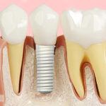Gengiva retraída em implante dentário: causas e recuperação estética.