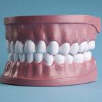 Prótese protocolo: como limpar as gengivas e implantes dentários.