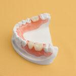 Prótese dentária de silicone: durabilidade e mastigação exigem atenção.