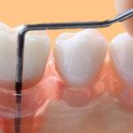 Enxerto de osso é pouco efetivo no tratamento da periodontite.