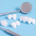 Prótese dentária em zircônia: o que é e quando deve ser utilizada.
